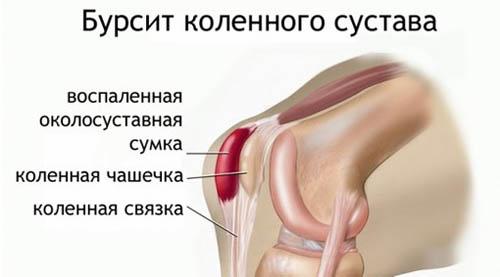 Где в москве сделать ультразвук коленного сустава афлотон лекарство для суставов