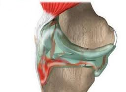 Что такое артроскопия коленного сустава