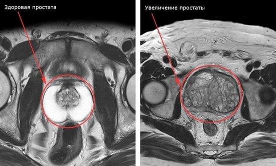 МРТ-снимок предстательной железы
