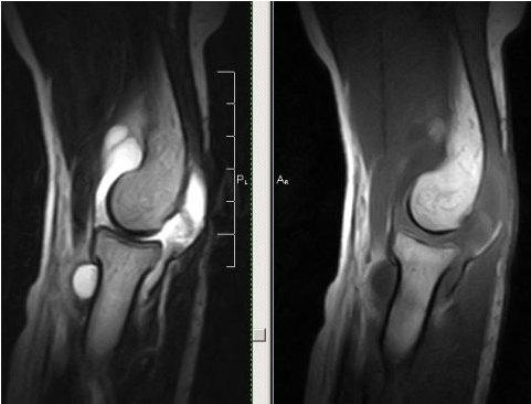 МРТ-снимок синовита локтевого сустава
