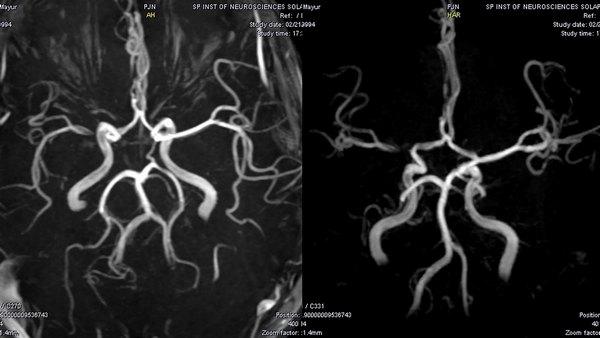 МРТ в режиме ангиографии