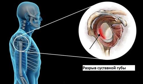 Магнито-резонансная томография плечевого сустава лечение для суставов народными средствами