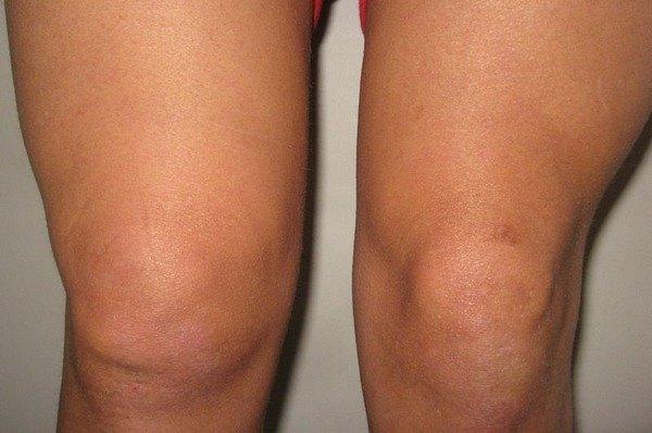 Изображение - Подготовка к артроскопии коленного сустава sinovit-kolennogo-sustava