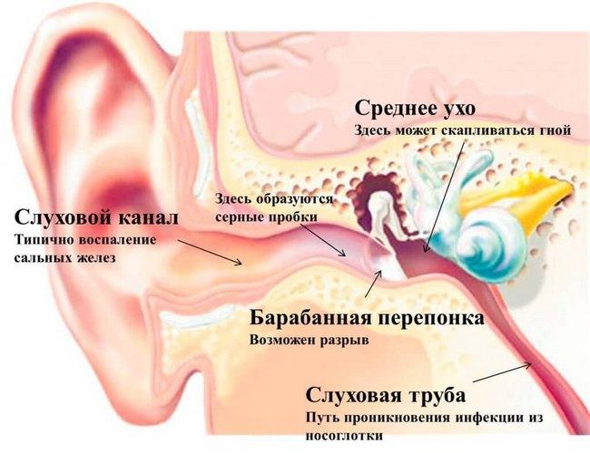 Как в домашних условиях лечить боль в ухе у