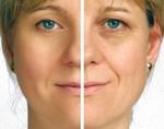 Обнаружен ген, благодаря которому человек выглядит моложе своих лет