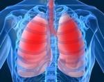 Новая молекула может продлить выживаемость пациентов с муковисцидозом
