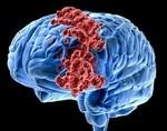 Выявлены гены агрессивной формы рака мозга