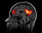 Неточности в МРТ заставили ученых сомневаться в итогах 40 тысяч научных исследований