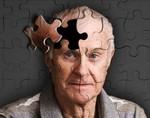 Открытие – сотрясение мозга и болезнь Альцгеймера взаимосвязаны
