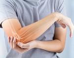 Неправильное питание провоцирует артрит