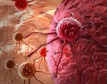 Найдено вещество, которое «кормит» рак