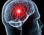 Правое полушарие мозга компенсирует афазию после инсульта