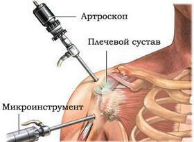 Артроскопия плечевого сустава