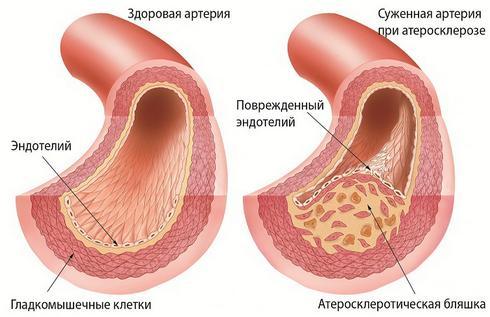 Атеросклероз – возможная причина приливов жара у мужчин