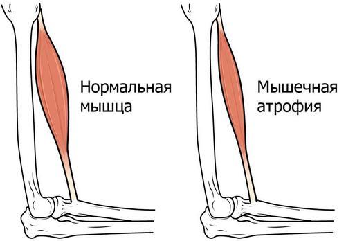 Что такое атрофия мышц