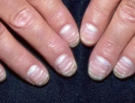 Белые полосы на ногтях
