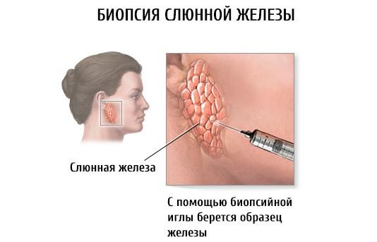 Биопсия малой слюнной железы
