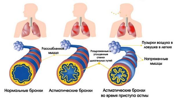 Бронхиальная астма – возможная причина нехватки воздуха