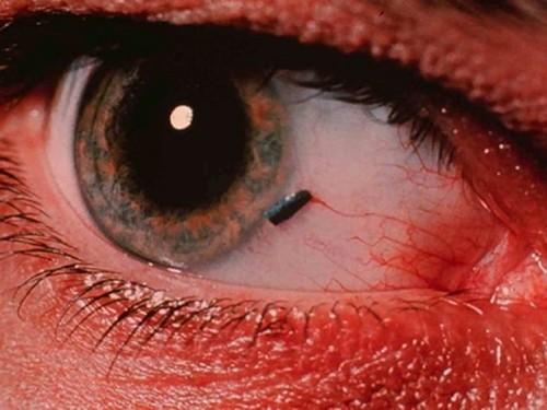 Чаще всего частое моргание вызывает попадание инородного тела в глаз