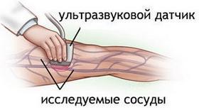 Доплерография сосудов нижних конечностей