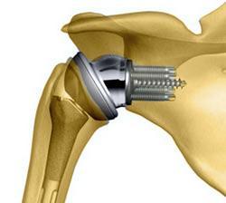 Изображение - Ноет плечевой сустав endoprotezirovaniye-plechevogo-sustava