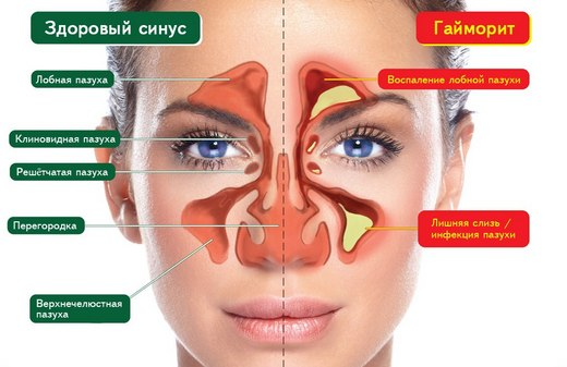 Гайморит – возможная причина ретенционного слезотечения
