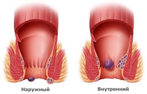 Геморрой – возможная причина кожного зуда в зоне анального отверстия