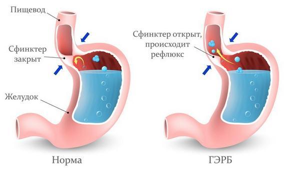 ГЭРБ – возможная причина спазмов в желудке