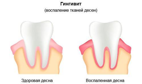 Гингивит — возможная причина кислого привкуса во рту
