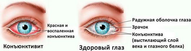 Конъюнктивит – возможная причина боли в глазах