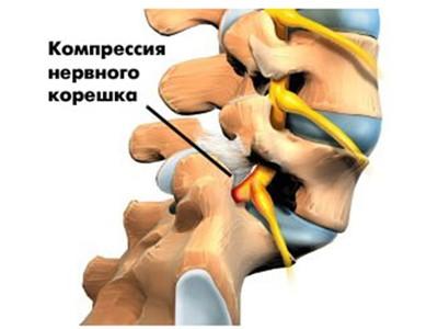 Хруст в шее: причины при поворотах головы, что делать