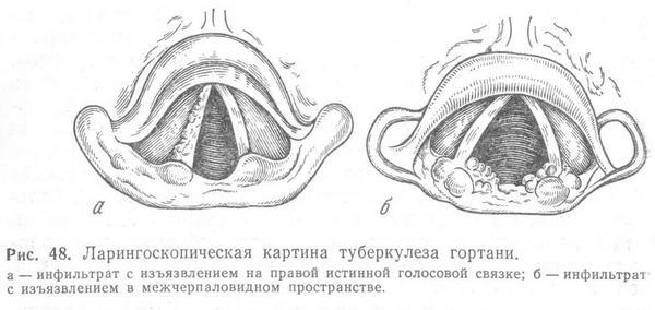 Ларингоскопическая картина туберкулеза гортани