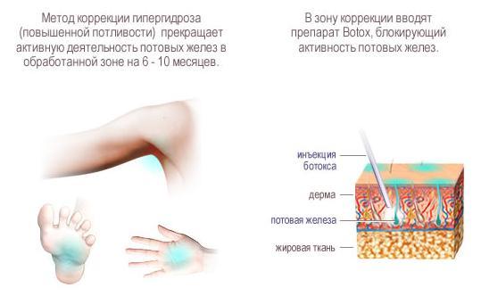 Лечение гипергидроза Ботоксом