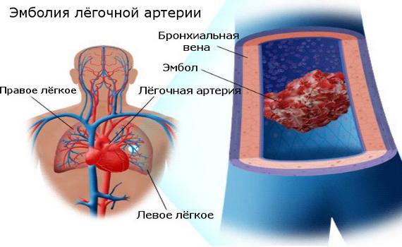 Лёгочная эмболия – возможная причина боли в груди при дыхании