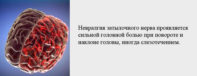 Боль при повороте головы может быть вызвана невралгией затылочного нерва