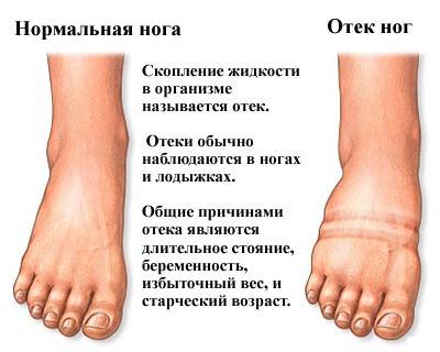 Общие причины отёка ног