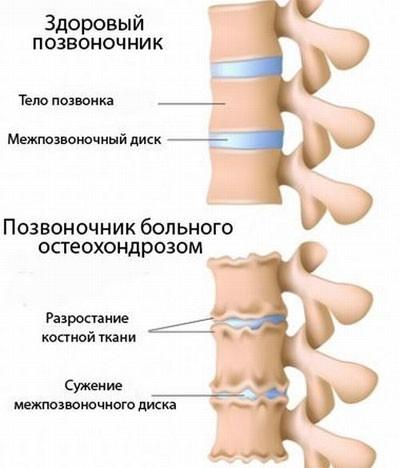 При вращении головой хруст в шее