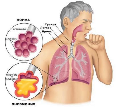 Пневмония – возможная причина ломоты в теле