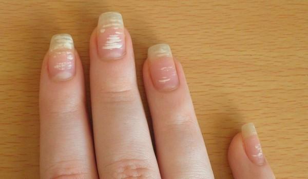 Поперечные белые полосы на ногтях