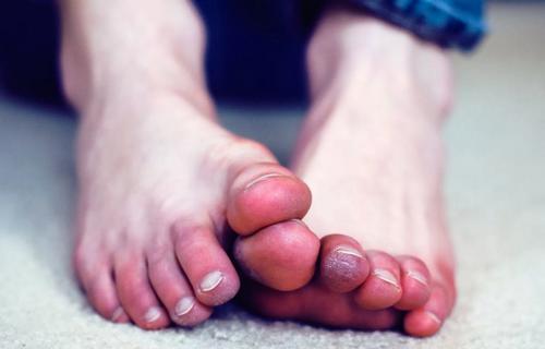 Посинение пальцев ног