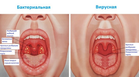 Повышенное слюноотделение как следствие заболеваний ротовой полости
