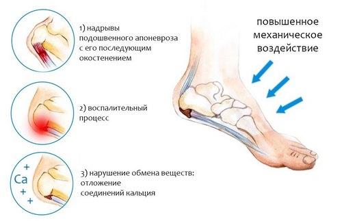 Причины болей в пятках