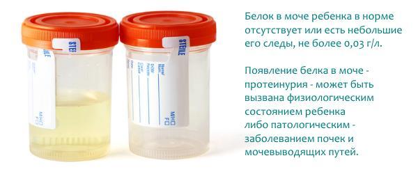Причины повышения белка в моче у ребёнка
