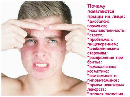 Причины появления акне на лице