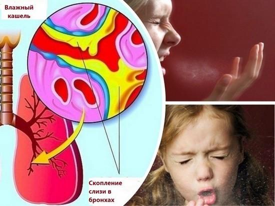 Причины влажного кашля