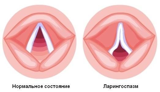 Приступ ларингоспазма