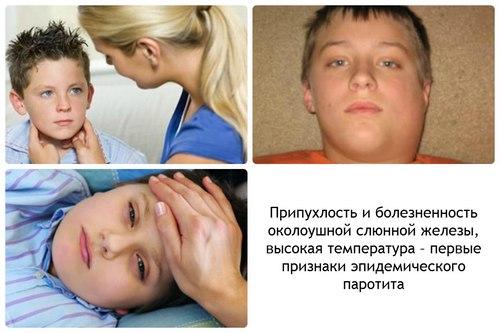 Признаки эпидемического паротита