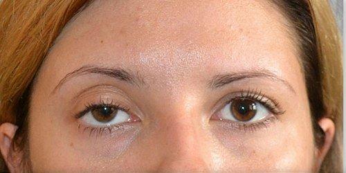 Птоз – возможная причина припухлости под глазами