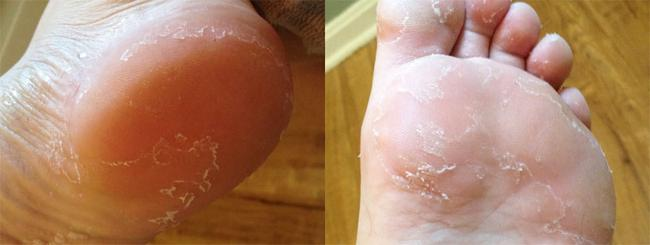 Шелушение кожи на ступнях