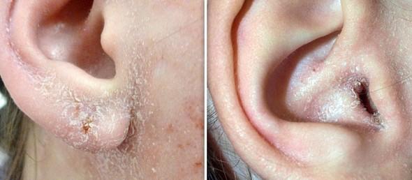 Шелушение кожи ушей